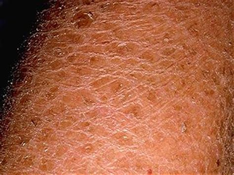fungus and scaly skin picture 7