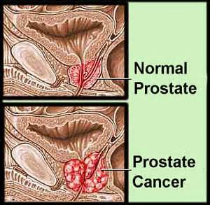 how does prostate cancer occur picture 7