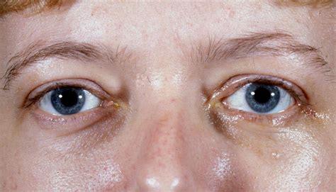eye disease thyroid picture 6