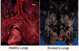 smoke in the lungs picture 15