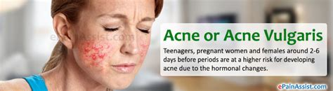 acne vulgaris causes, diagnosis & treatments - clinical picture 14