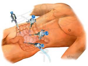sugery for colon cancer picture 2