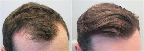 avodart on hair loss picture 5