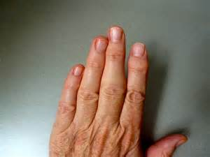 pain in knuckle in first finger picture 5