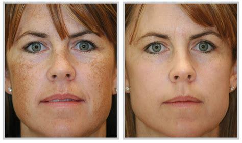 acne treatment laser picture 7