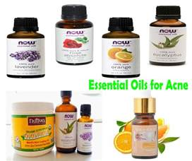 oils for acne picture 1