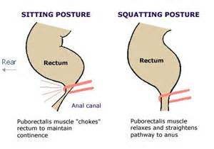 prostate surgery constipation picture 10