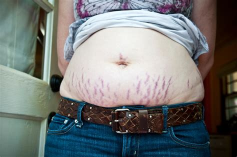 prices on cool beam therapy for stretch marks picture 9
