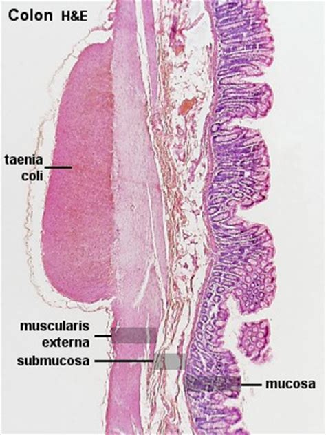 cancer cells on outside of colon picture 7