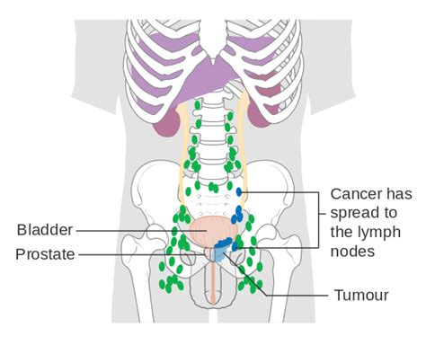 bladder cancer that spread to lymph nodes picture 2