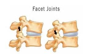 diagnosis of spinal facet joint laxity picture 2