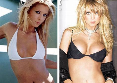 actresses and breast augmentation jobs picture 1