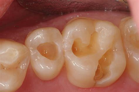 cavaties teeth picture 3