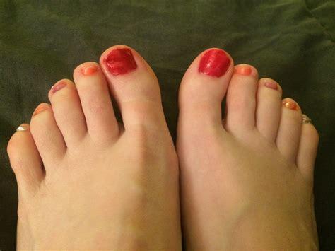 toenails picture 9