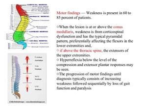 bladder malignancy picture 10