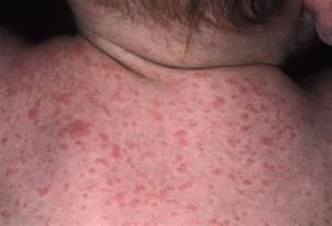 inflammation of skin caused by an allergy taking adderall xr picture 17
