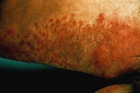 can yeast infection cause really dry skin in picture 14