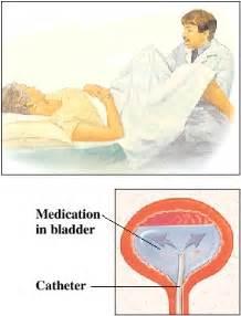 bcg bladder instillation picture 7