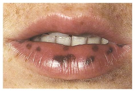 lip warts picture 2