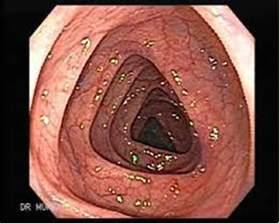 bowel prep for colonoscopy picture 7