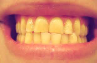 8 year old teeth are turning yellow picture 2