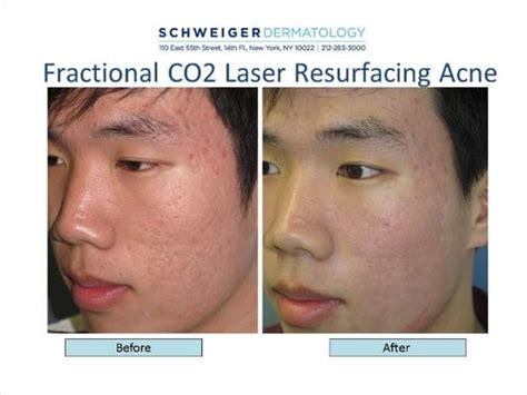 acne co2 picture 7