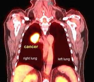 metastatic colon cancer in liver and lungs survival picture 15