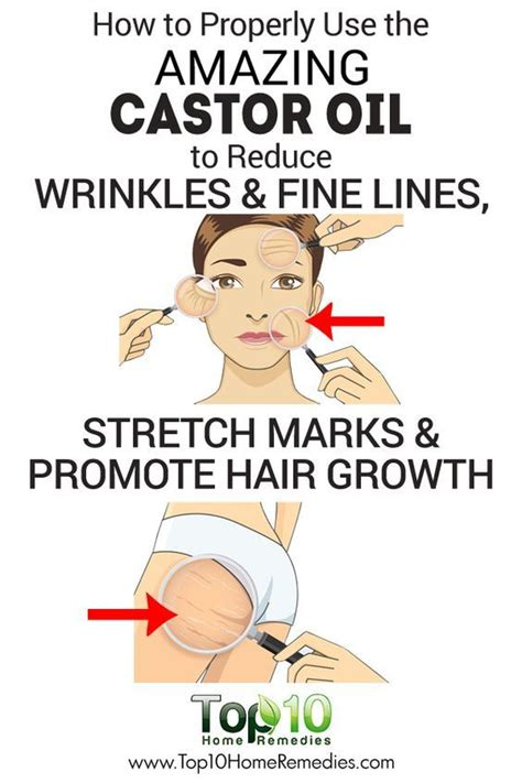 homemade stretch mark creams picture 5