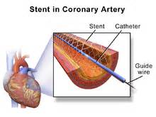 heart stents medications picture 6