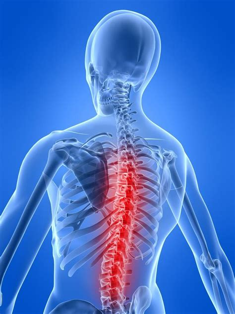 back rib muscle pain picture 5