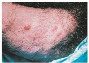 genital warts on penis picture 3