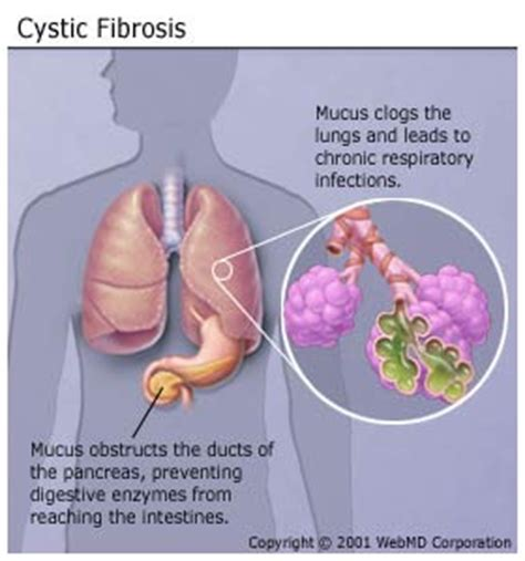 cystic fibrosis in the breast picture 9