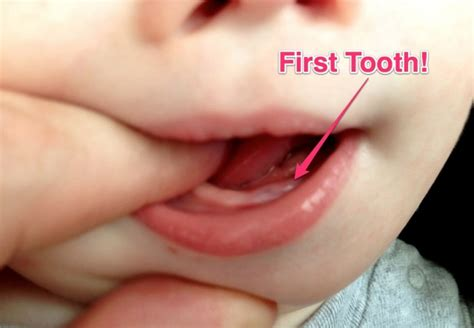 earliest babies get teeth picture 5