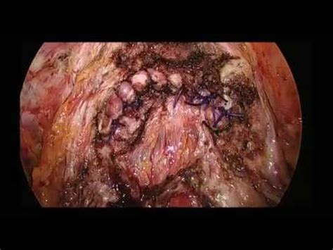 advanced colon cancer picture 7