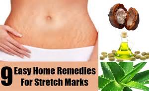 remedy for stretch marks picture 15