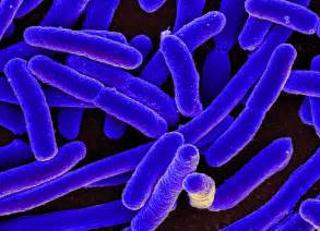 e coli infection outbreak 2013 picture 10