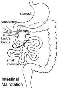 intestinal rotation in s picture 1