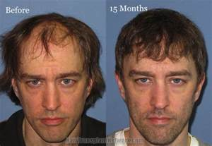 cheapest hair transplant picture 10
