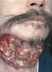 human papillomavirus uk picture 10