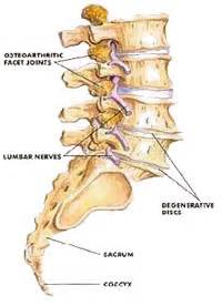 degenrative joint diease in the spine picture 28