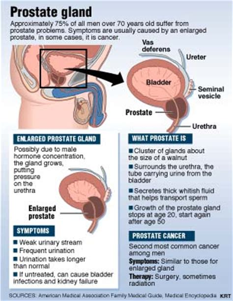 Purpose of the prostate picture 3