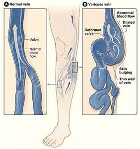 Swollen ankles medical symptoms blood pressure picture 1