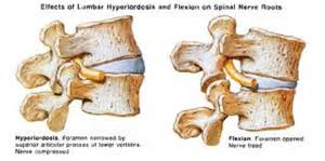 facet joint hypertrophy picture 13