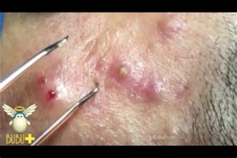needle acne cyst picture 15