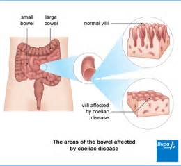 autoimmune disease  dietary causes  nutritional treatment picture 17