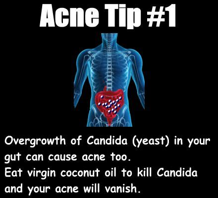 acne and candida picture 9