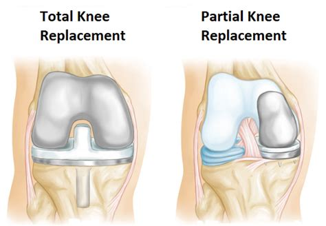 medial knee pain + joint space picture 11