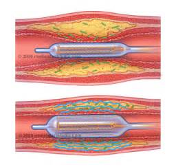 kelacore and blood flow picture 2