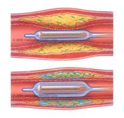 penis urethral insertion picture 13
