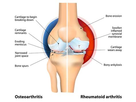 bilateral degnerative joint disease picture 5